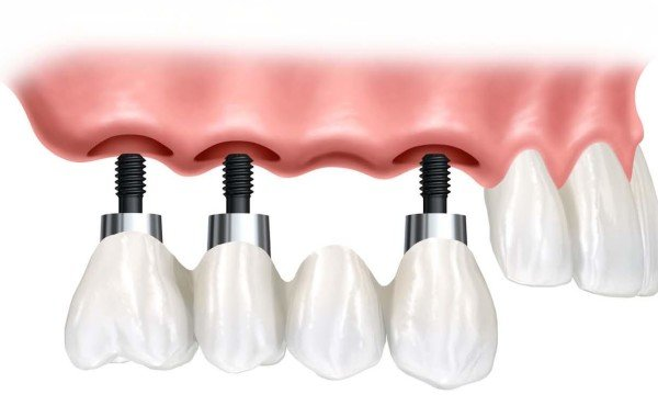 Dental-Treatment-Implant-Supported-Bridge