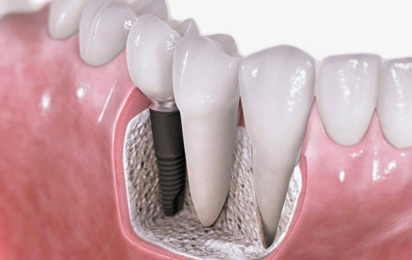 Dental-treatment-Single-Tooth-Implant-Replacement